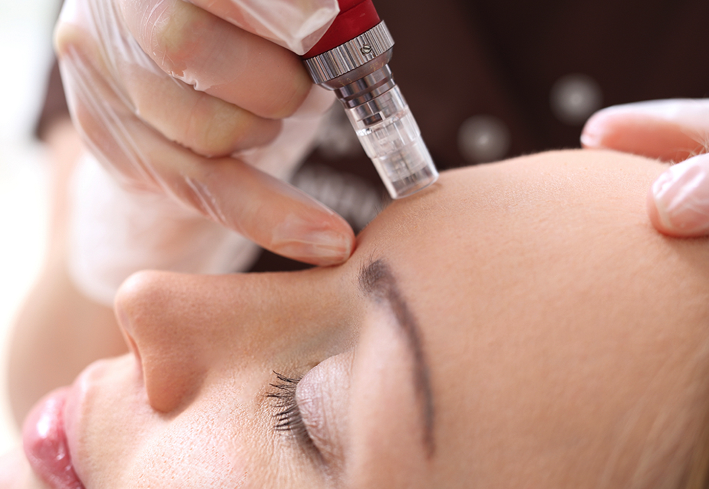 mesotherapy - Mesotherapy
