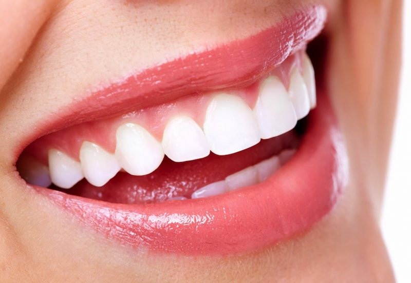 teeth whitening 800x552 - Dental