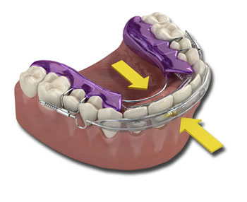 INMAN ALIGNER - Teeth Straightening