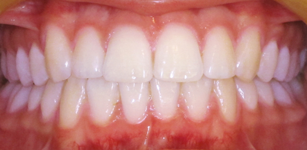 QST After - Teeth Straightening