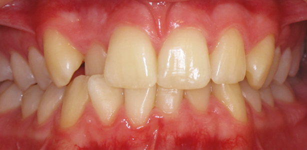 QST Before - Teeth Straightening