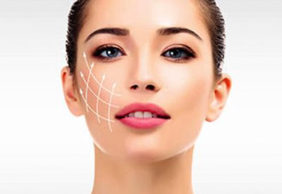 dermal fillers 400x276 - Treatments