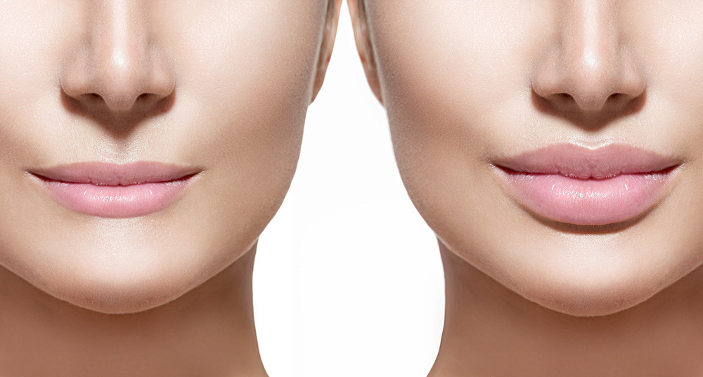 lips - Lip Augmentation