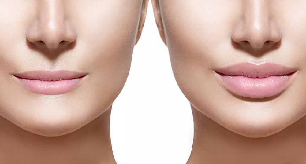 lips - Lip Enhancement