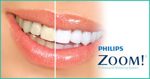 PHILIPS ZOOM - Professional Teeth Whitening
