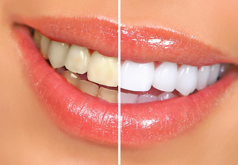 teeth whitening - Professional Teeth Whitening