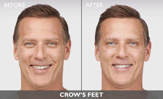 BotoxMenBeforeandAfter - For Men