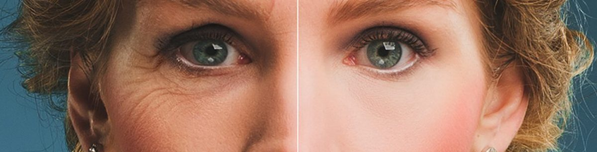 Reduce  the signs of ageing 1200x306 - How Retinol helps reduce the signs of ageing