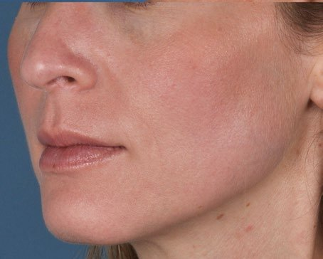 ZO Aggressive Anti Aging Program Level III 1 after - How Retinol helps reduce the signs of ageing
