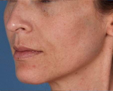 ZO Aggressive Anti Aging Program Level III 1 before - How Retinol helps reduce the signs of ageing