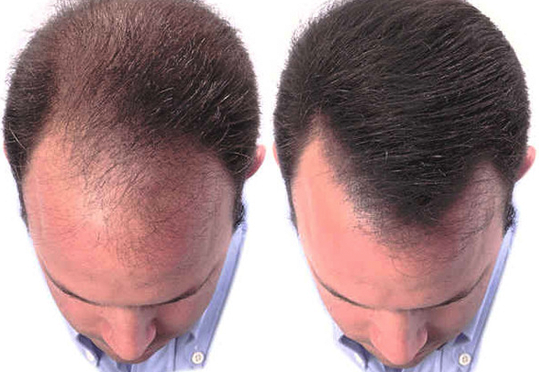 hair loss - For Men