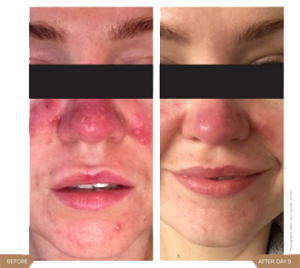 Real Patients Rosacea 1 300x268 - Sensitive Skin and Rosacea