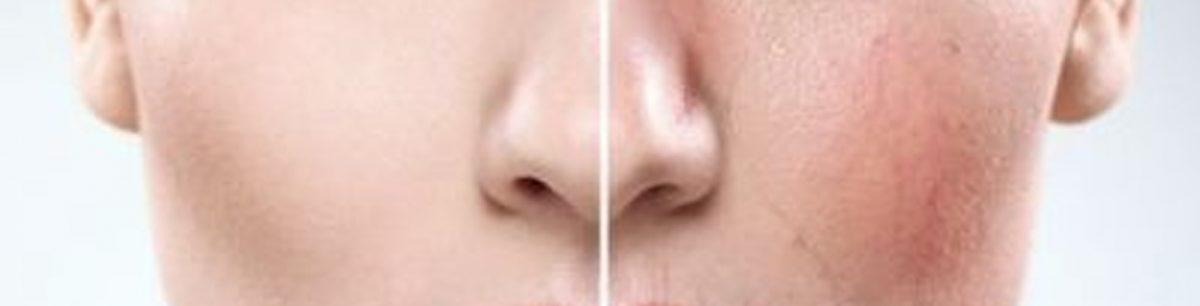 Sensitive Skin and Rosacea 1200x306 - Sensitive Skin and Rosacea