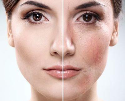 rosacea - Sensitive Skin and Rosacea