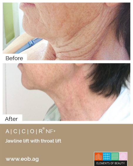 Before and After Jawline throat lift - Plasma Pen Treatments