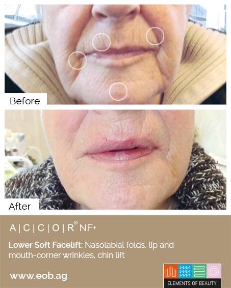 Softfacelift Before and After - Plasma Pen Treatments