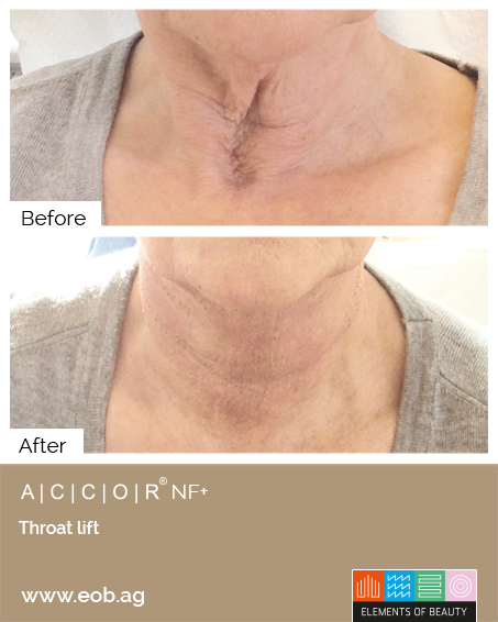 Throatlift Before and After - Plasma Pen Treatments