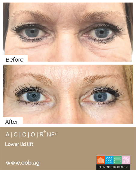 Under Eyelid Before and After - Plasma Pen Treatments