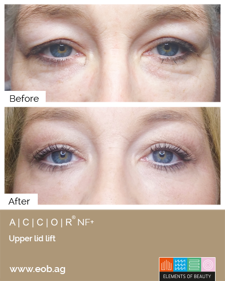 Upperlid Lift Before and After - Plasma Pen Treatments