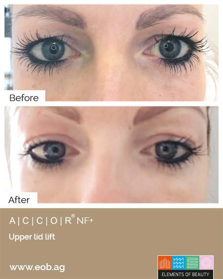 Upperlid lift2 Before and After - Plasma Pen Treatments