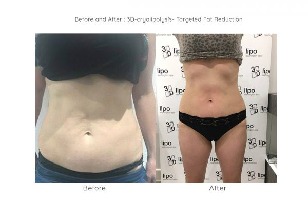 cryo fat freezing 600x398 - 3D Lipo