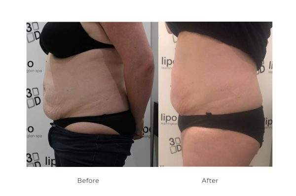 radiofrequency body 600x398 - 3D Lipo