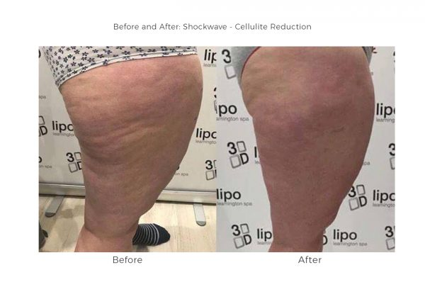 shockwave cellulite 600x398 - 3D Lipo