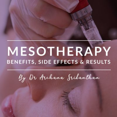 Mesotherapy mobile Header 400x400 - Blog