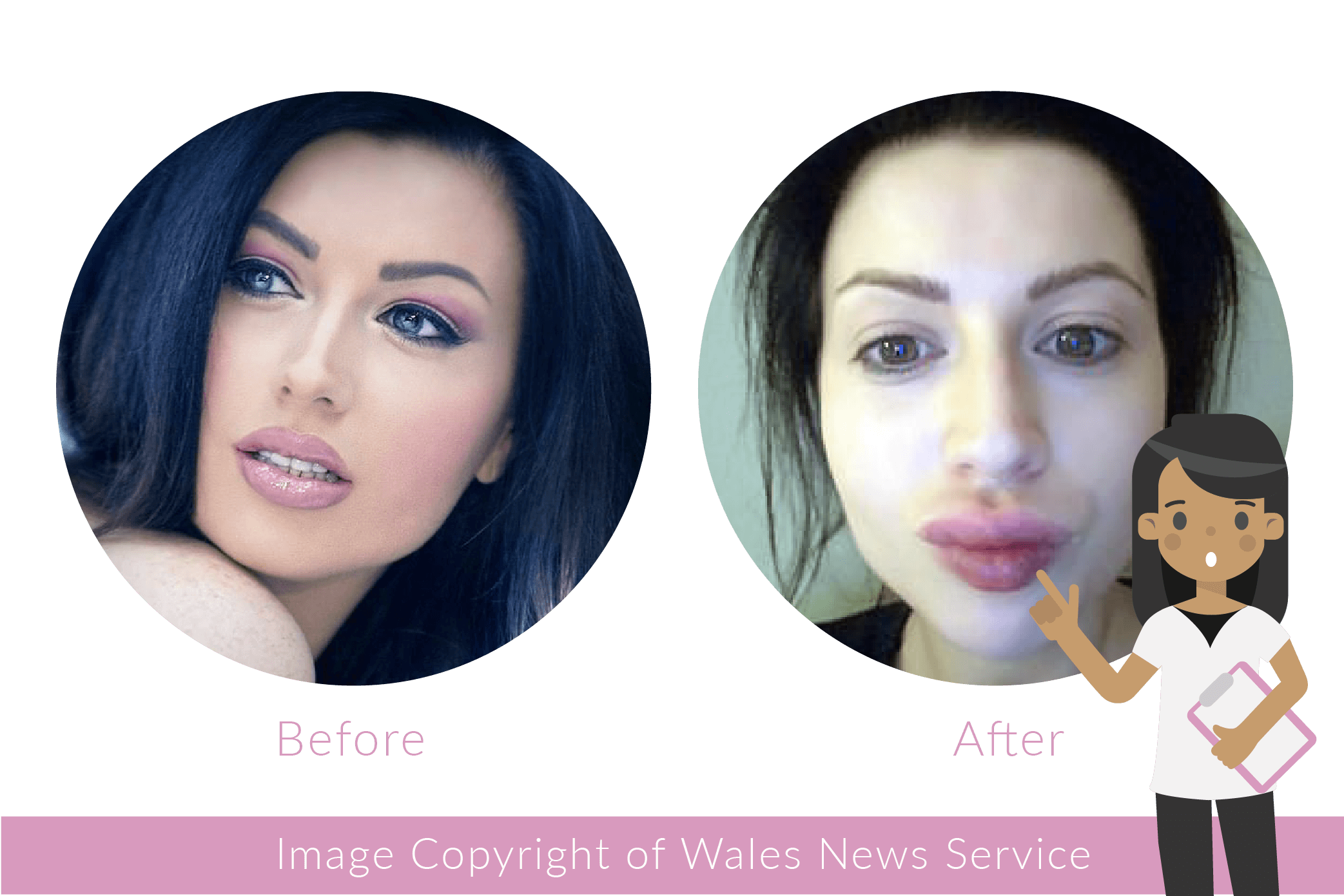 Artboard 2 copy 8 - 5 reasons to avoid cheap and easy cosmetic procedures