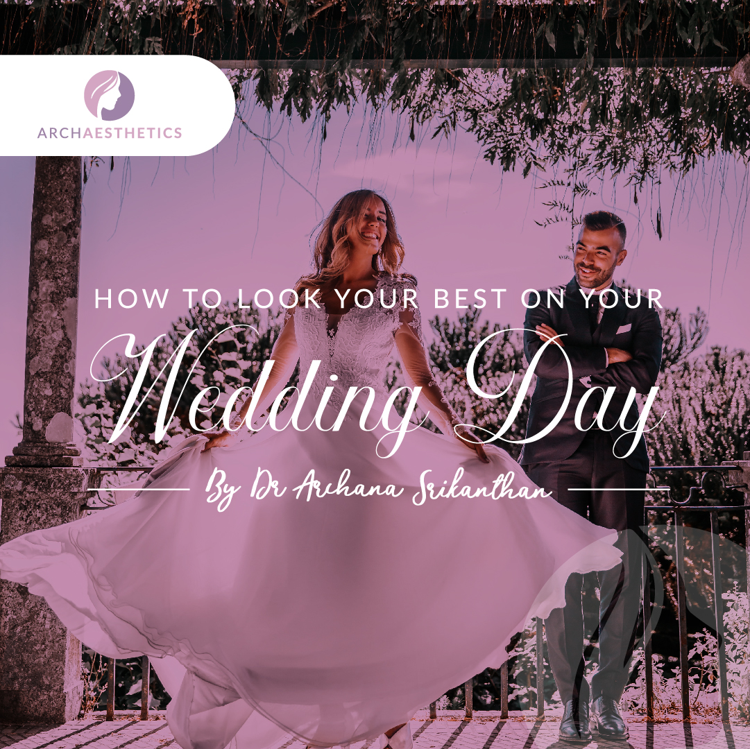 How to look your best on your wedding day mobile - How to look your best on your wedding day