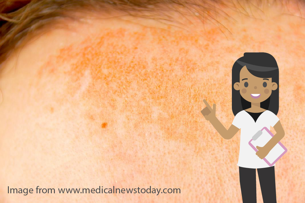 What is hyperpigmentation2 - What causes hyperpigmentation and how can it be treated?