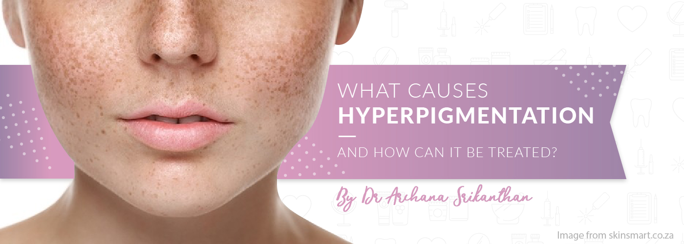 hyperpigmentation Header - What causes hyperpigmentation and how can it be treated?